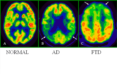 What Is A Pet Scan Healthy Brains By Cleveland Clinic What Is A